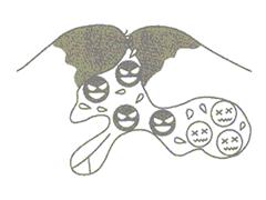丘疹(赤にきび)